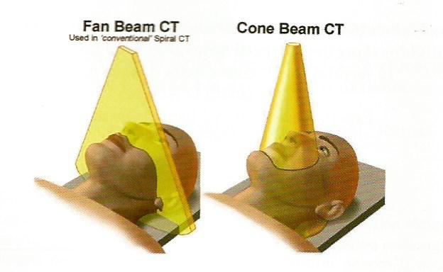 Diagnostica radiologica di ultima generazione: Cone Beam